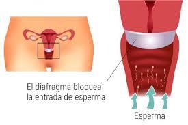 diafragma vaginal